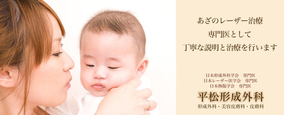 あざのレーザー治療専門医として丁寧な説明と治療を行います 日本形成外科学会 専門医 日本レーザー医学会 専門医 日本熱傷学会 専門医 平松形成外科 形成外科・美容皮膚科・皮膚科